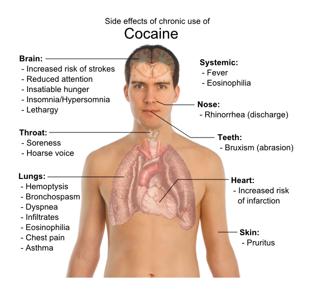Cocaine Effects on the Body, Brain, Etc - Effects of Cocaine Abuse